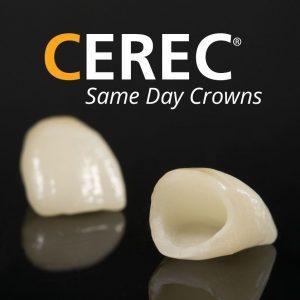 Dental Crown neat Ashfield