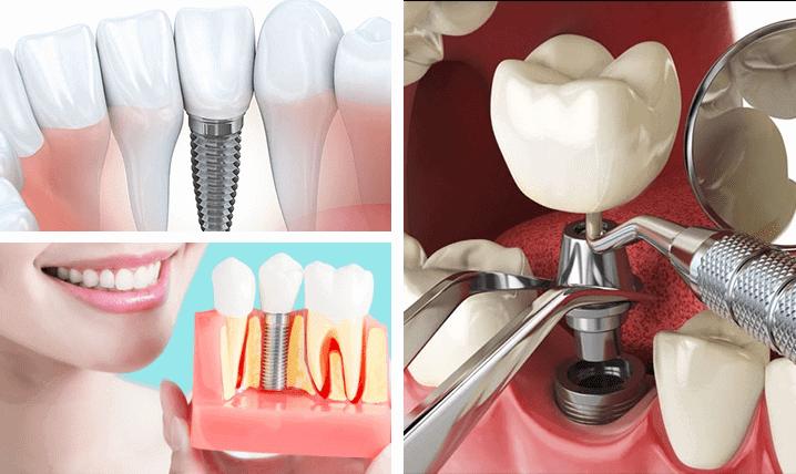 Dental Implants Periodontist