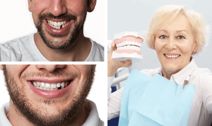 Broken Teeth Treatment near Ashfield
