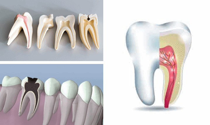 Root Canal Treatment in Ashfield
