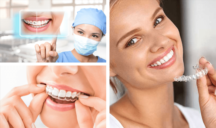 Invisalign and Braces Ashfield NSW