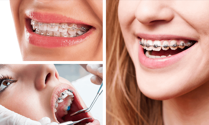 Orthodontist Ashfield NSW