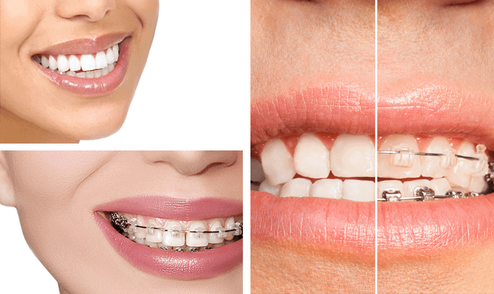 Dental Braces near Ashfield