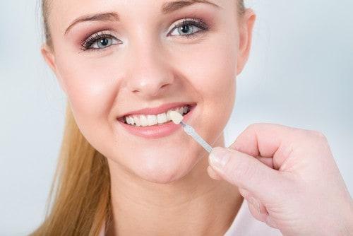 Teeth Whitening Test by Dentist Ashfield
