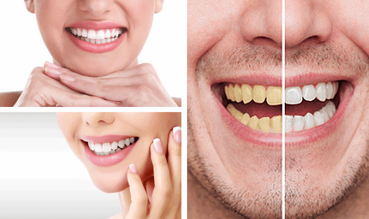 Teeth Whitening Services at Ashfield