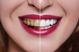 a picture showing discoloured teeth and results after treatment