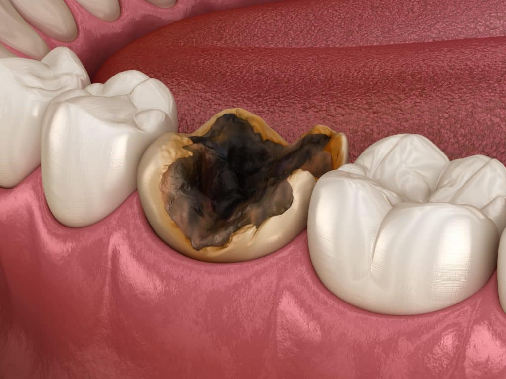 signs of a dead tooth