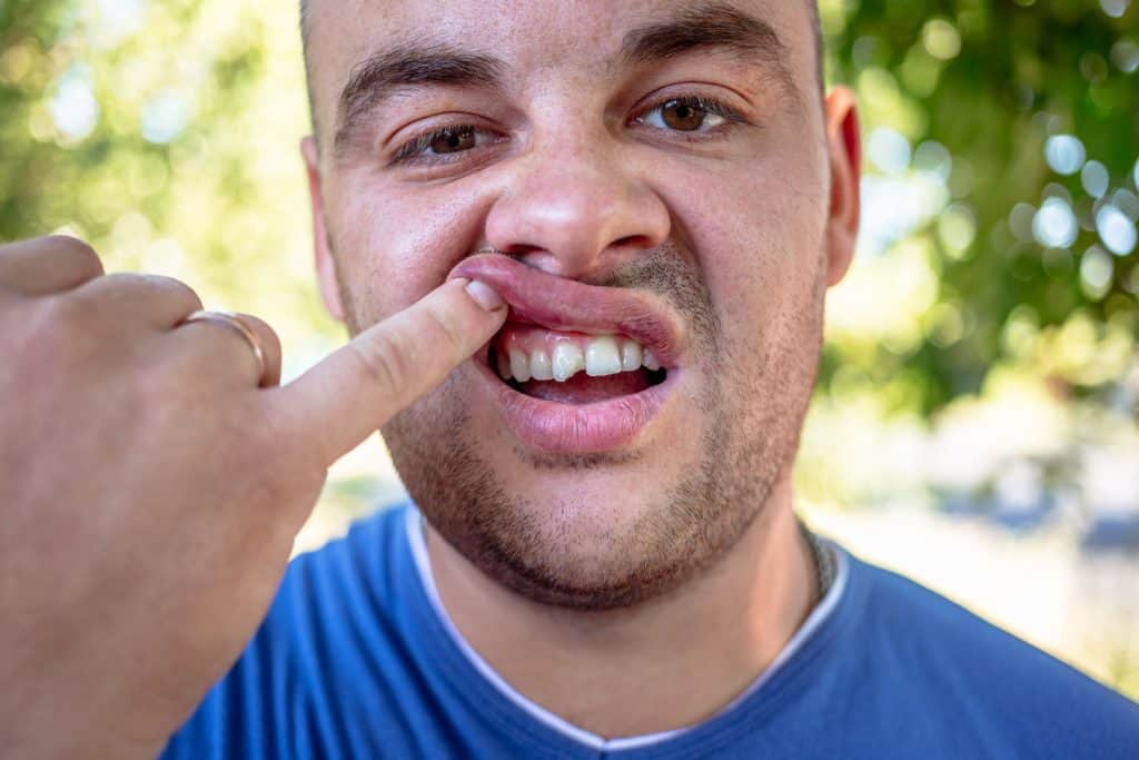 an image of a man with a cracked tooth